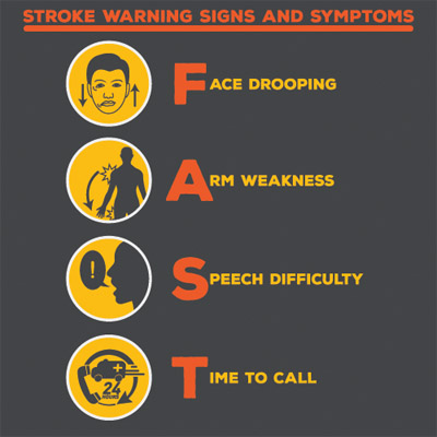 Learn The Signs And Symptoms Of A Stroke And Tia. Vertical Building Signs. Number 21 Signs Of Stroke. Getting Signs. Squiggly Line Signs. Water Tank Signs. Yoga Signs Of Stroke. Cotton Candy Signs Of Stroke. Connective Tissue Signs
