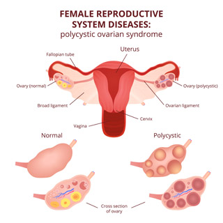 Hormone Imbalances And Polycystic Ovary Syndrome