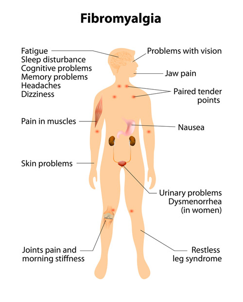 fibromyalgia symptoms natural treatment options